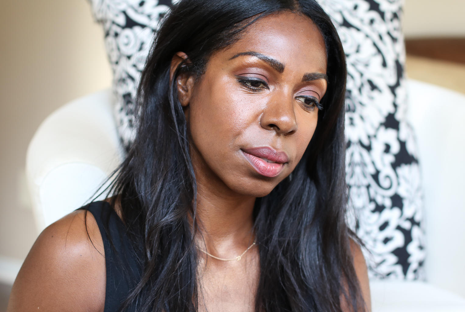 I Got Dermal Fillers And This is What Happened - Belotero at Oxygen MediSpa | Style Domination by Dominique Baker