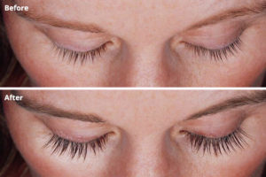 All About Lashes Latisse Results Before and After