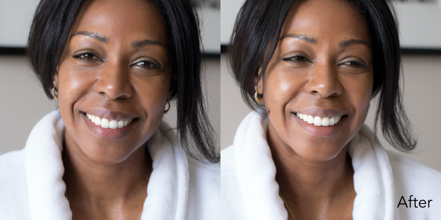 Close up shots of Dominique Baker after using Olay Retinol24 Night Moisturizer
