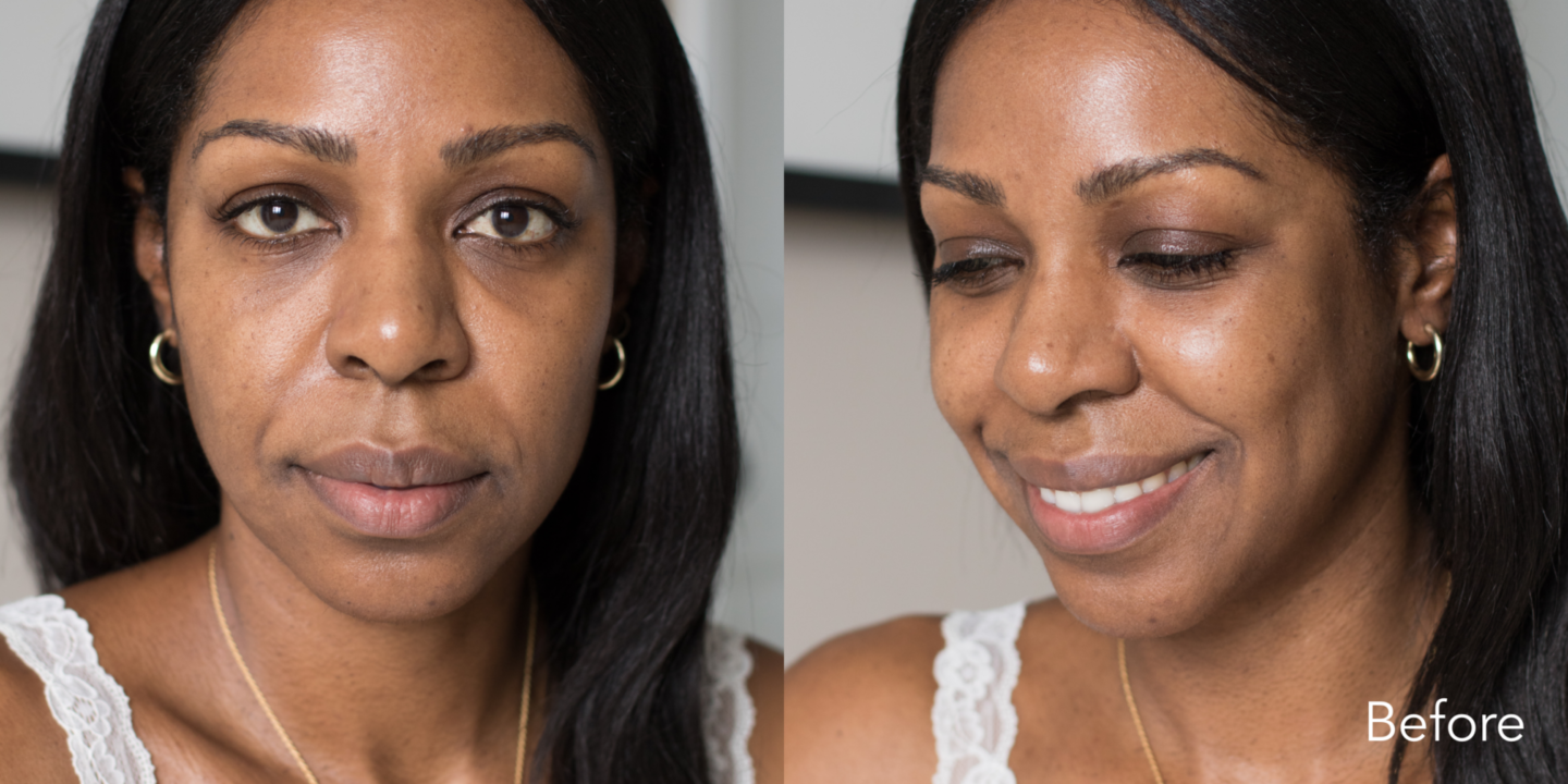 Close up shots of Dominique Baker's skin before using Olay Retino24